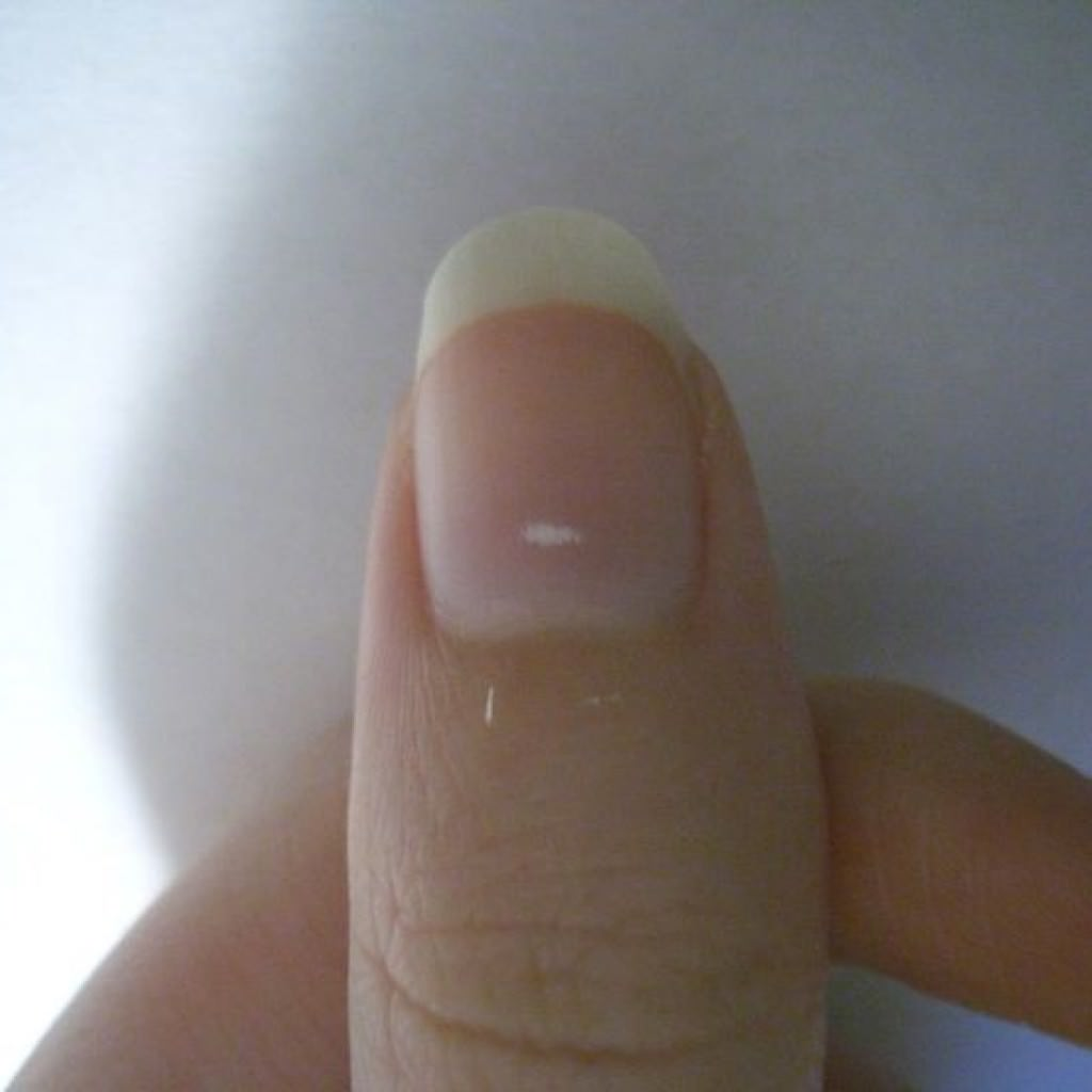 white spots on finer nails